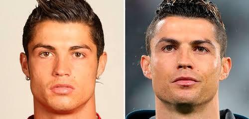 Cristiano Ronaldo Operation