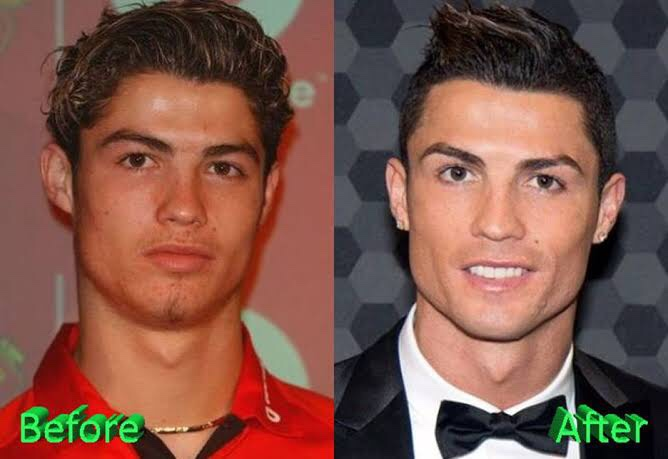 Cristiano Ronaldo Before and After Looks